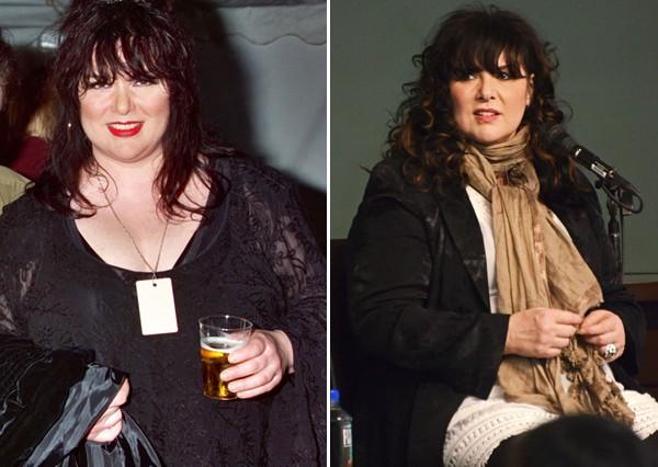 ann-wilson-weight-loss-surgery-before-after-600x426